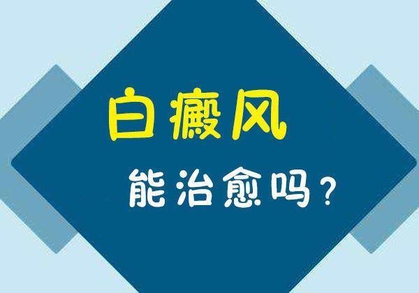 昆明白斑专科医院排名:白癜风能治愈好吗